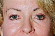 Eyelid Surgery After Photo by Steve Laverson, MD; San Diego, CA - Case 42034