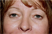 Eyelid Surgery Before Photo by Steve Laverson, MD; San Diego, CA - Case 42034