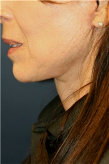 Neck Lift After Photo by Steve Laverson, MD; San Diego, CA - Case 42035