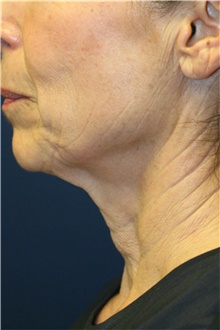 Neck Lift Before Photo by Steve Laverson, MD; San Diego, CA - Case 42035