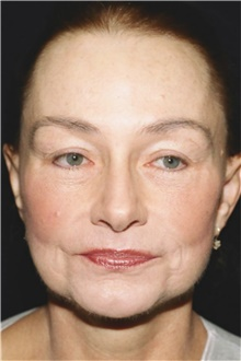 Facelift After Photo by Steve Laverson, MD; San Diego, CA - Case 42039
