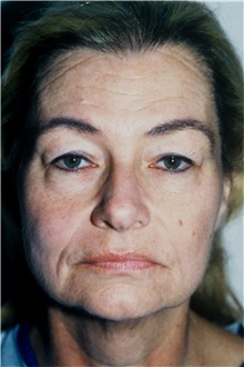 Facelift Before Photo by Steve Laverson, MD; San Diego, CA - Case 42039