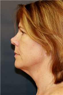 Facelift Before Photo by Steve Laverson, MD; San Diego, CA - Case 42040
