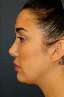 Rhinoplasty After Photo by Steve Laverson, MD; San Diego, CA - Case 42054
