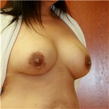 Breast Lift After Photo by Steve Laverson, MD; San Diego, CA - Case 42061