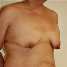Breast Lift Before Photo by Steve Laverson, MD; San Diego, CA - Case 42061
