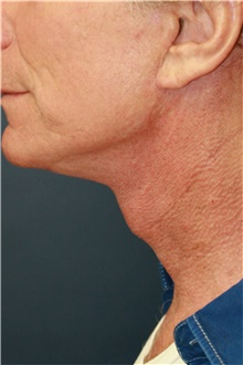 Neck Lift After Photo by Steve Laverson, MD; San Diego, CA - Case 42062