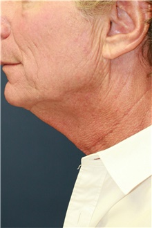 Neck Lift Before Photo by Steve Laverson, MD; San Diego, CA - Case 42062