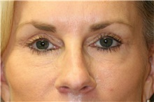 Eyelid Surgery After Photo by Steve Laverson, MD; San Diego, CA - Case 42070