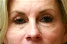 Eyelid Surgery Before Photo by Steve Laverson, MD; San Diego, CA - Case 42070