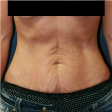 Tummy Tuck Before Photo by Steve Laverson, MD; San Diego, CA - Case 42095