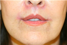 Lip Augmentation / Enhancement After Photo by Steve Laverson, MD; San Diego, CA - Case 42098
