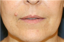 Lip Augmentation / Enhancement Before Photo by Steve Laverson, MD; San Diego, CA - Case 42098