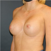 Breast Augmentation After Photo by Steve Laverson, MD; San Diego, CA - Case 42099
