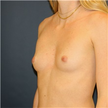 Breast Augmentation Before Photo by Steve Laverson, MD; San Diego, CA - Case 42099