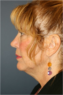 Facelift Before Photo by Steve Laverson, MD; San Diego, CA - Case 42108