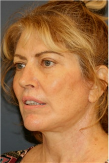 Facelift After Photo by Steve Laverson, MD; San Diego, CA - Case 42108
