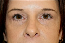 Eyelid Surgery After Photo by Steve Laverson, MD; San Diego, CA - Case 42109