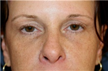 Eyelid Surgery Before Photo by Steve Laverson, MD; San Diego, CA - Case 42109