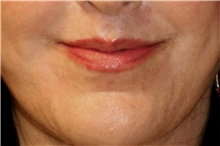 Lip Augmentation / Enhancement After Photo by Steve Laverson, MD; San Diego, CA - Case 42110