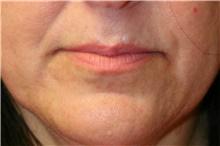 Lip Augmentation / Enhancement Before Photo by Steve Laverson, MD; San Diego, CA - Case 42110