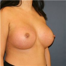 Breast Augmentation After Photo by Steve Laverson, MD; San Diego, CA - Case 42128