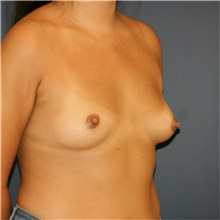 Breast Augmentation Before Photo by Steve Laverson, MD; San Diego, CA - Case 42128
