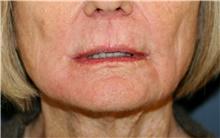 Lip Augmentation / Enhancement After Photo by Steve Laverson, MD; San Diego, CA - Case 42129