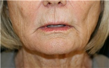 Lip Augmentation / Enhancement Before Photo by Steve Laverson, MD; San Diego, CA - Case 42129