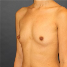 Breast Augmentation Before Photo by Steve Laverson, MD; San Diego, CA - Case 42140