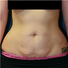Tummy Tuck Before Photo by Steve Laverson, MD; San Diego, CA - Case 42141