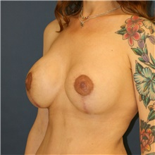 Breast Lift After Photo by Steve Laverson, MD; San Diego, CA - Case 42143