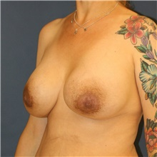 Breast Lift Before Photo by Steve Laverson, MD; San Diego, CA - Case 42143