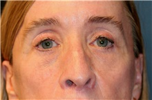 Eyelid Surgery After Photo by Steve Laverson, MD; San Diego, CA - Case 42149