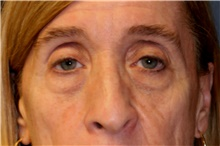 Eyelid Surgery Before Photo by Steve Laverson, MD; San Diego, CA - Case 42149