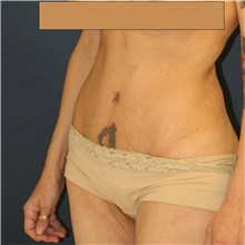 Tummy Tuck After Photo by Steve Laverson, MD; San Diego, CA - Case 42152