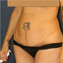 Tummy Tuck Before Photo by Steve Laverson, MD; San Diego, CA - Case 42152