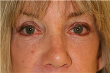 Eyelid Surgery After Photo by Steve Laverson, MD; San Diego, CA - Case 42158