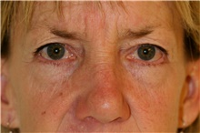Eyelid Surgery Before Photo by Steve Laverson, MD; San Diego, CA - Case 42158