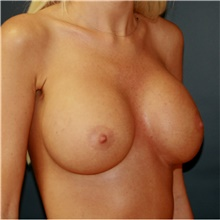 Breast Augmentation After Photo by Steve Laverson, MD; San Diego, CA - Case 42164