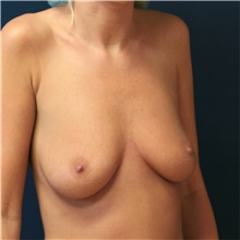 Breast Augmentation Before Photo by Steve Laverson, MD; San Diego, CA - Case 42164