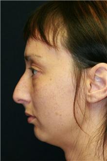 Rhinoplasty Before Photo by Steve Laverson, MD; San Diego, CA - Case 42168