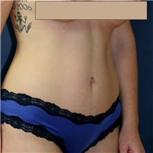 Tummy Tuck After Photo by Steve Laverson, MD; San Diego, CA - Case 42173