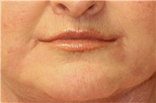 Lip Augmentation / Enhancement After Photo by Steve Laverson, MD; San Diego, CA - Case 42174