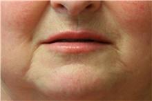 Lip Augmentation / Enhancement Before Photo by Steve Laverson, MD; San Diego, CA - Case 42174