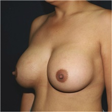 Breast Augmentation After Photo by Steve Laverson, MD; San Diego, CA - Case 42184