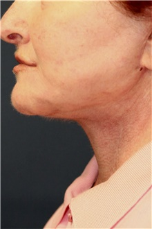Neck Lift After Photo by Steve Laverson, MD; San Diego, CA - Case 42185