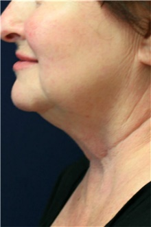 Neck Lift Before Photo by Steve Laverson, MD; San Diego, CA - Case 42185