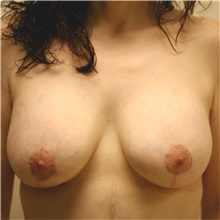 Breast Lift After Photo by Steve Laverson, MD; San Diego, CA - Case 42367