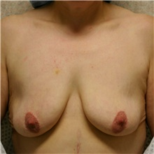 Breast Lift Before Photo by Steve Laverson, MD; San Diego, CA - Case 42367